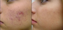 HOMEMADE REMEDIES FOR THE TREATMENT OF ACNE2