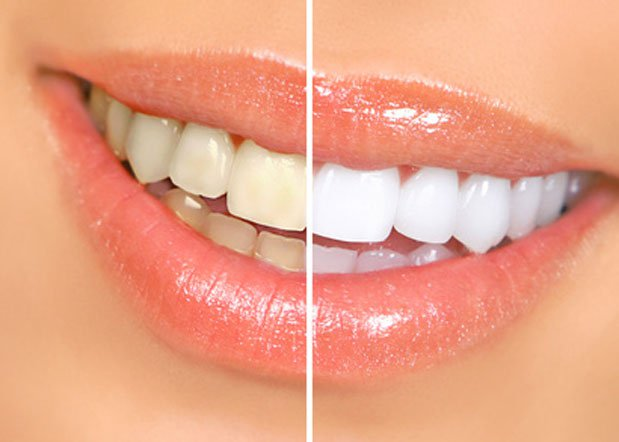 Homemade Remedies for the Treatment of Yellow Teeth