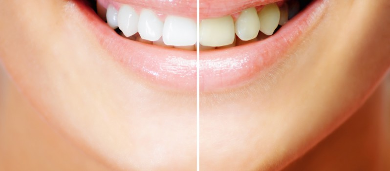 Homemade Remedies for the Treatment of Yellow Teeth1