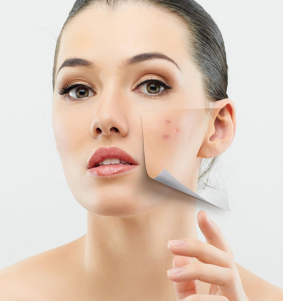 Homemade Remedies for the treatment of Acne